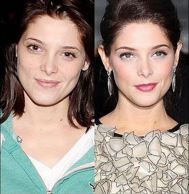 ashley greene nose job plastic surgery before and after photos