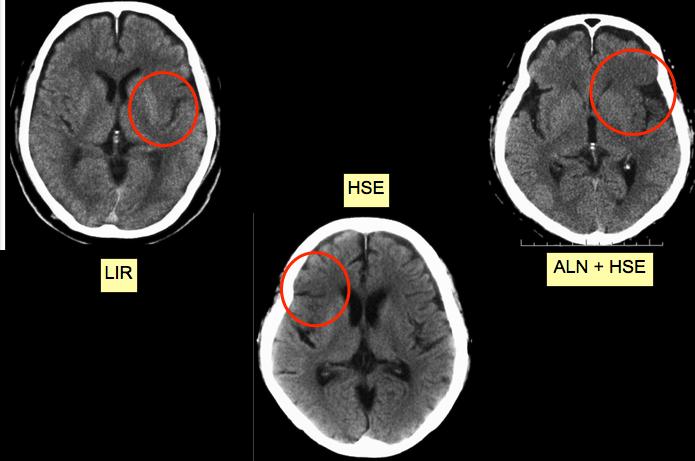 梗塞 初期 脳