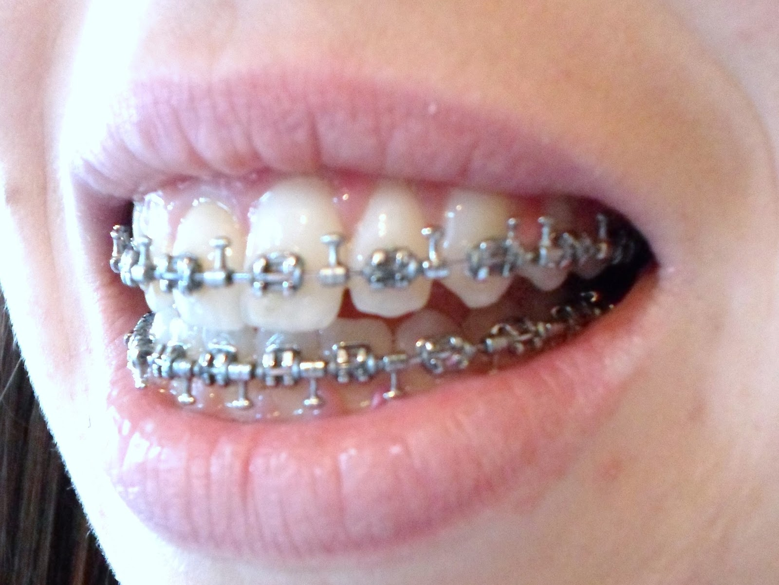Is it hard to hook up with braces
