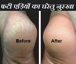 एडियों का फटना  फीट केयर इन हिंदी ,एडियों के फटने की समस्या, सर्दी में अपने पैरों की देखभाल, फीट केयर इन हिंदी, cracked heel care tips in hindi language,