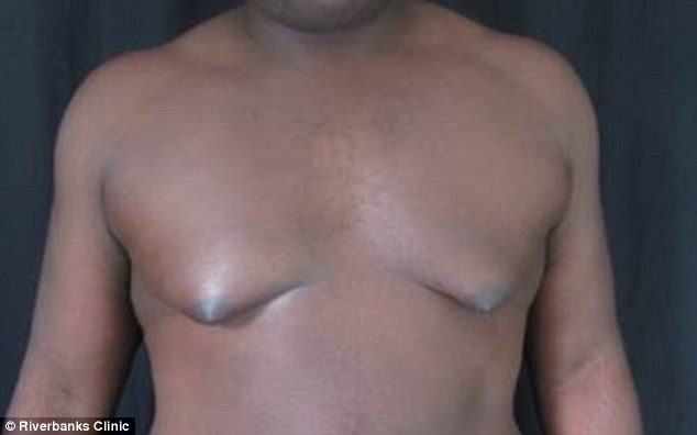 what are male breasts called