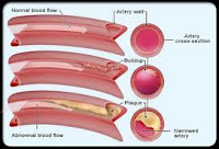 Faktor penting yang menjadi penyebab dari kolesterol tinggi