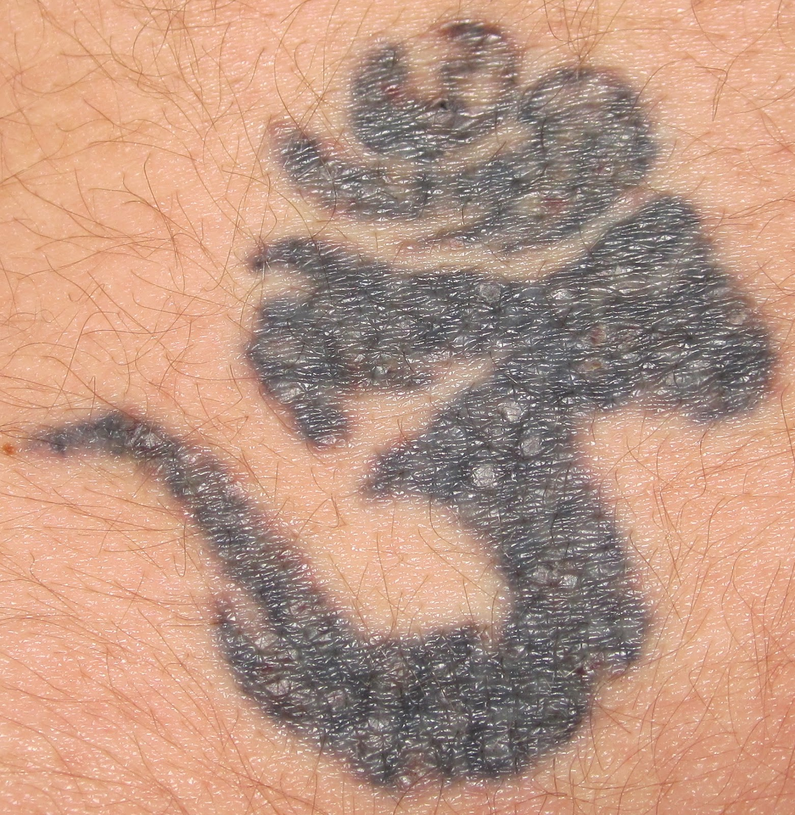 How Much Is Laser Tattoo Removal