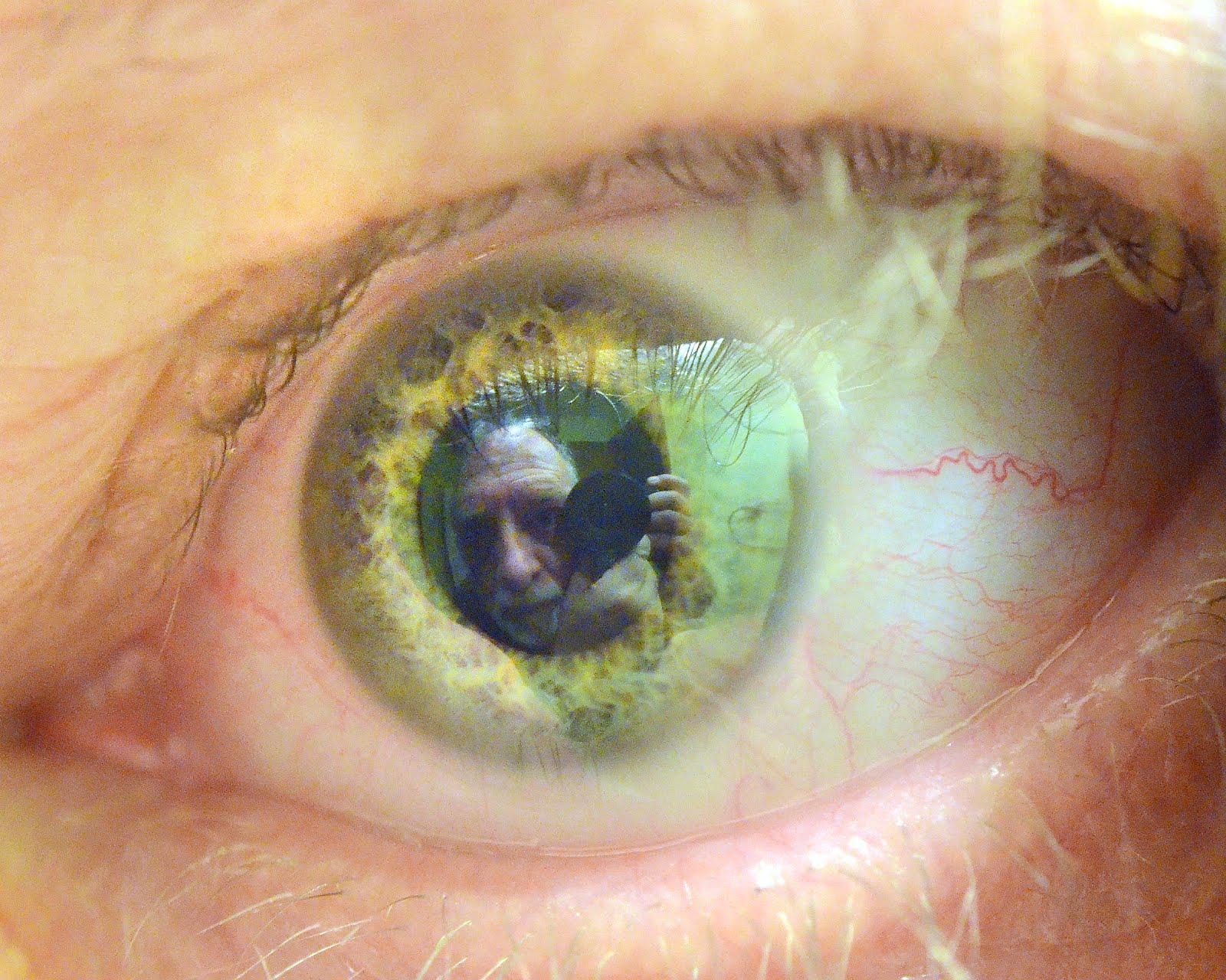 I - Eye