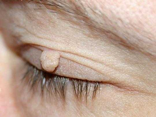 most horrible weirdest strangest diseases fibroma