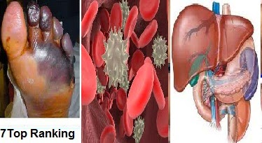 7 Jenis Penyakit Mematikan di Dunia