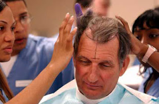 hair+loos+treatment Learn To Control Hair Loss With These Tips