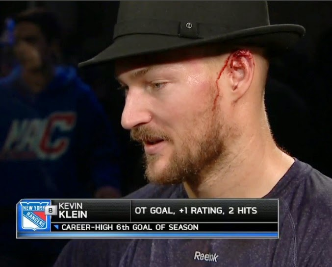 Kevin Klein got his ear put back together then beat Pens