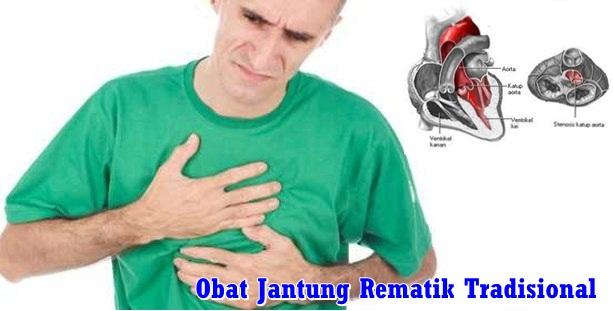 Obat Jantung Rematik Tradisional