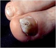 psoriasis-ungueal