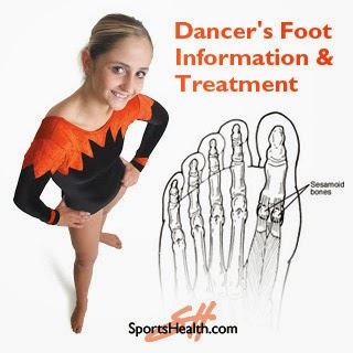 Dancer's foot information, sesmoiditis