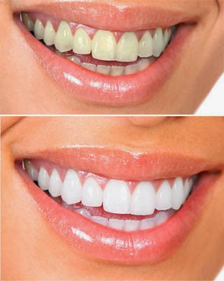 photo of woman's smile before and after teeth whitening