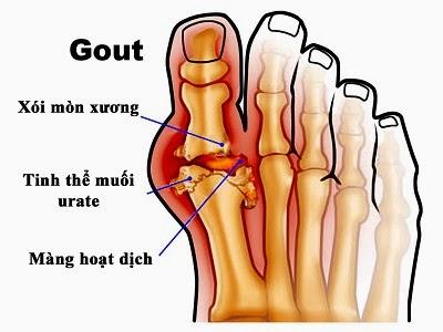 Thực phẩm chức năng hỗ trợ bệnh gút - (gout)
