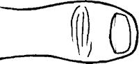 Pulgar acabado en forma de bola o cachiporra