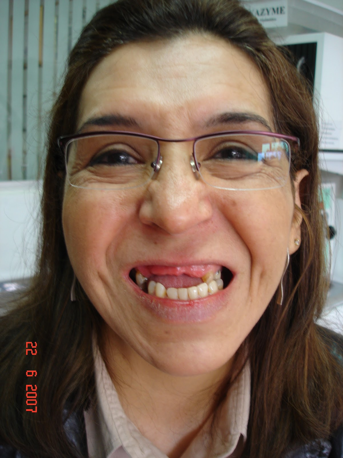 Ortodoncia actual for W de porter ortodoncia
