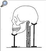 El entumecimiento de la cabeza y la persona a la osteocondrosis