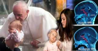 Baby Gianna's brain tumor shrunk after the Pope gave her head a kiss