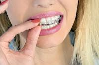 واقي الأسنان