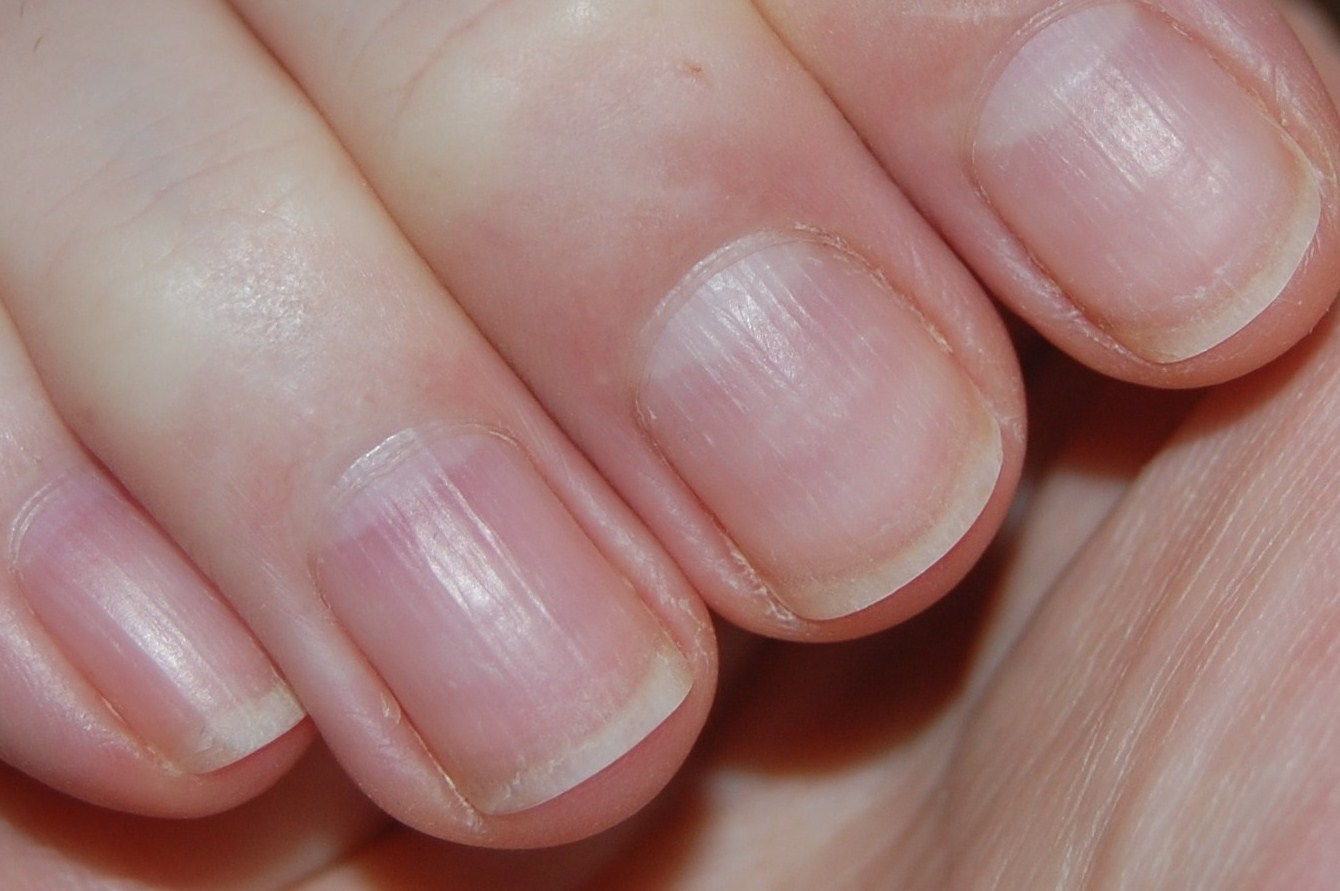 Common Nail Problems: Conditions, Treatments, and Pictures ...