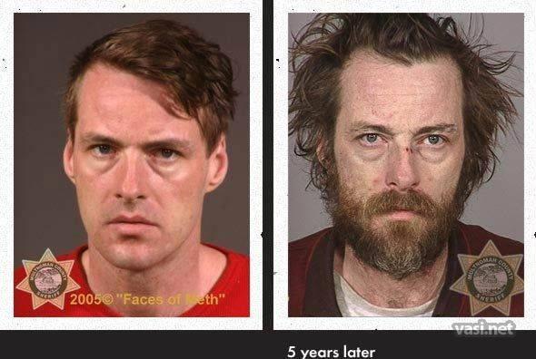 wajah ke 21 Wajah Para Pemakai Narkoba Sebelum Dan Sesudah Kecanduan
