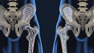 Fratura de fêmur em idosos pode ser sinal de osteoporose