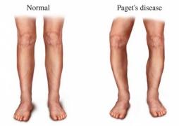Informatii medicale despre cauzele, simptomele si tratamentul bolii Paget
