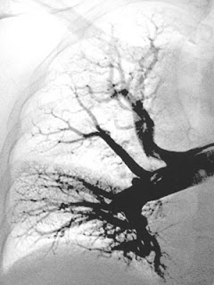 Tromboembolismo pulmonar TEP