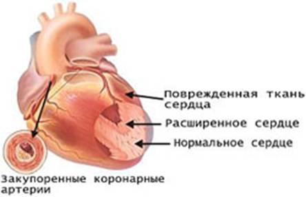Все болезни связаны с кровью