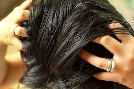 penyebab jerawat di kulit kepala