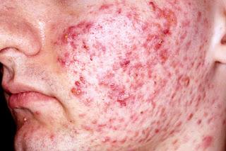 stokis zarraz di kelantan, azhaan brothers, murai com, malaysia kini, inflammatory pimples, palpules, pustules, jerawat bernanah,