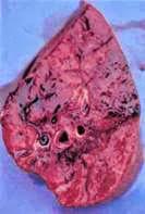 Hình 5: Viêm phổi có những abcess.