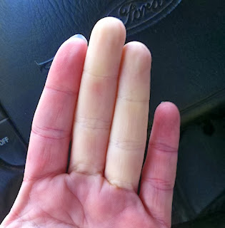 raynaud sindrome