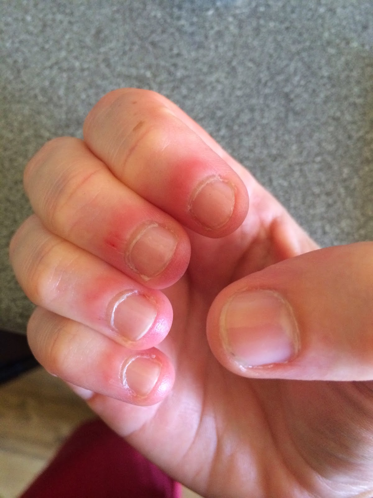how to stop your nails from splitting at the edges