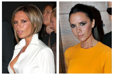 Victoria Beckham Breast Implants Removal