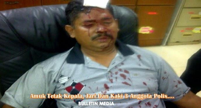 Amuk Tetak Kepala, Jari Dan Kaki 3 Anggota Polis..