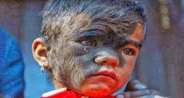 كيف أصبح وجه الطفلة بعد إزالة الشعر من وجهها