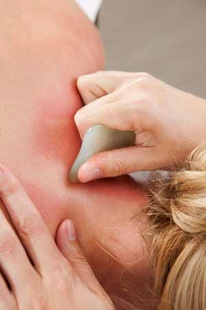 Woman receiving a Gua Sha technique from an acupuncturist.