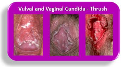 Darker skin in pubic, genital, rectum areas and between ...