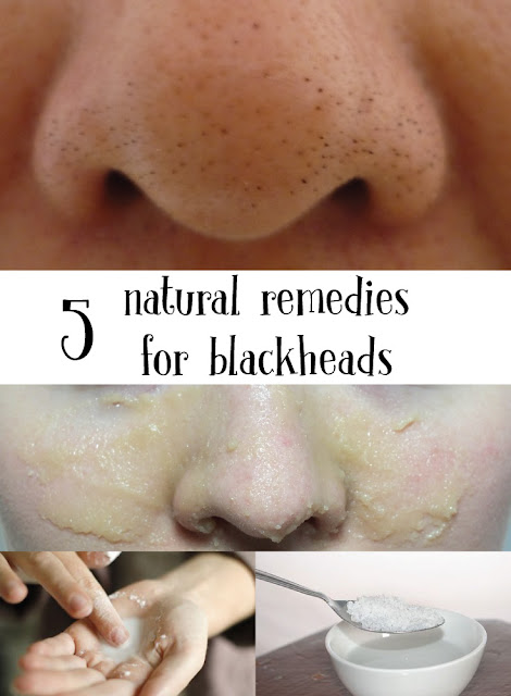 5 natural remedies for blackheads
