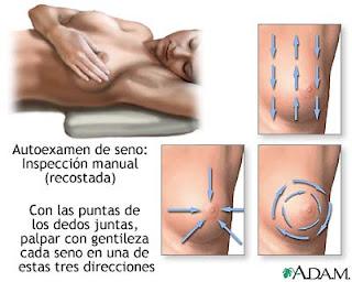 Examen mensual de senos