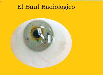 Protesis+ocular+2.png