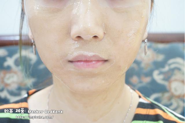 masker tradisional redkank penghilang jerawat