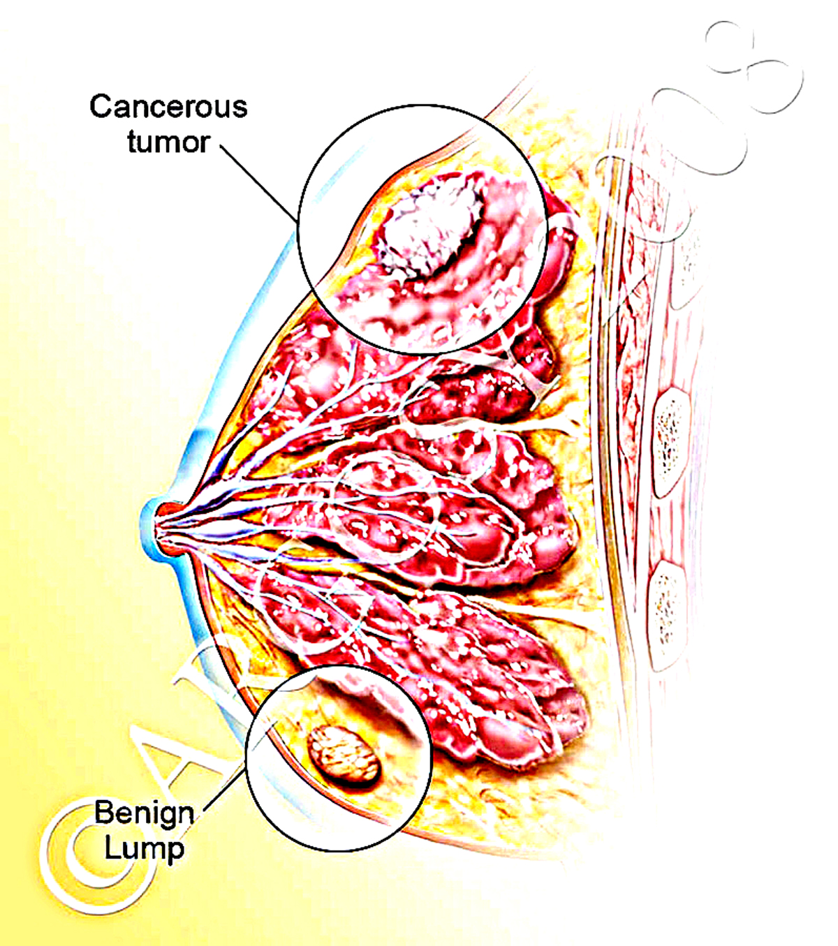 Esophageal Cancer Diagram