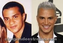 Jay Manuel antes y después