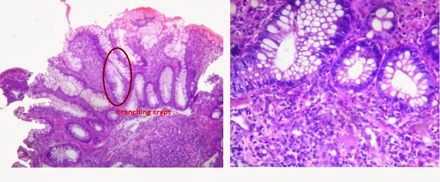 liver ulcerative colitis