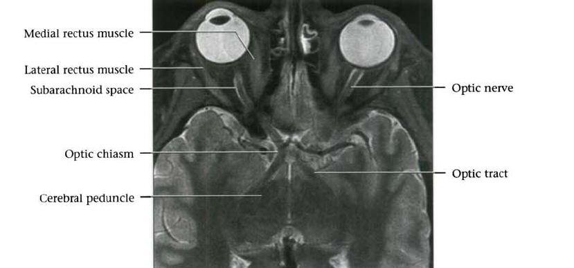 Optic chiasm mri anatomy