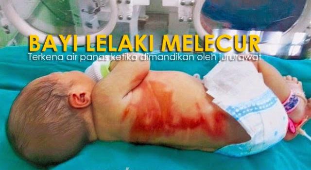 Kesiannya Jururawat Cuai Bayi Melecur