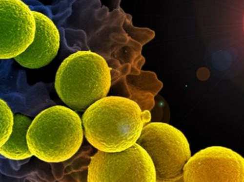實驗發現脂質體可打敗超級細菌 It was found that liposomes can beat superbugs