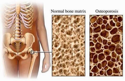 Остеопороз симптомы и лечение у мужчин