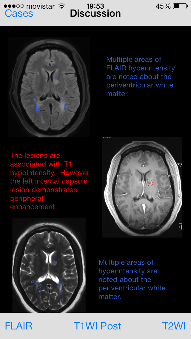 Neuroradiology Cases 4